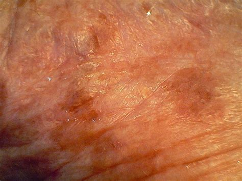Actinic Keratosis Treatment Over The Counter Uk